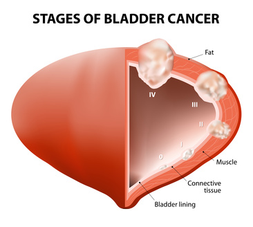 cancer bladder